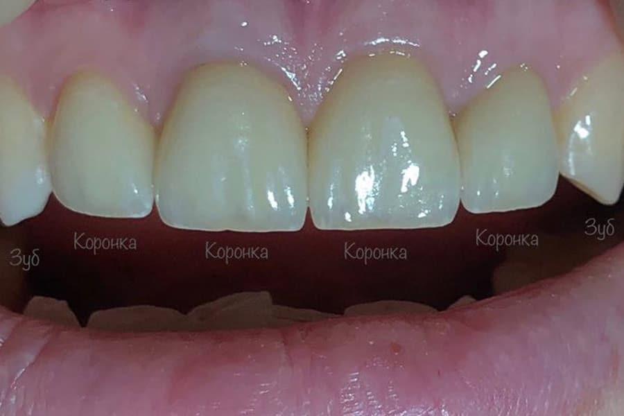 Восстановление эстетики передних зубов с помощью керамических коронок EMAX