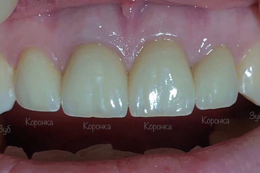 Восстановление эстетики передних зубов