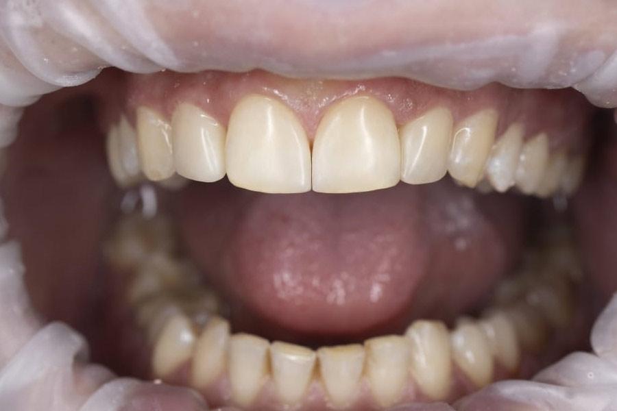 Реставрация зубов с использованием виниров