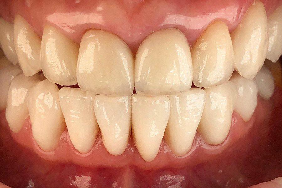 Восстановление улыбки с помощью керамических коронок EMAX