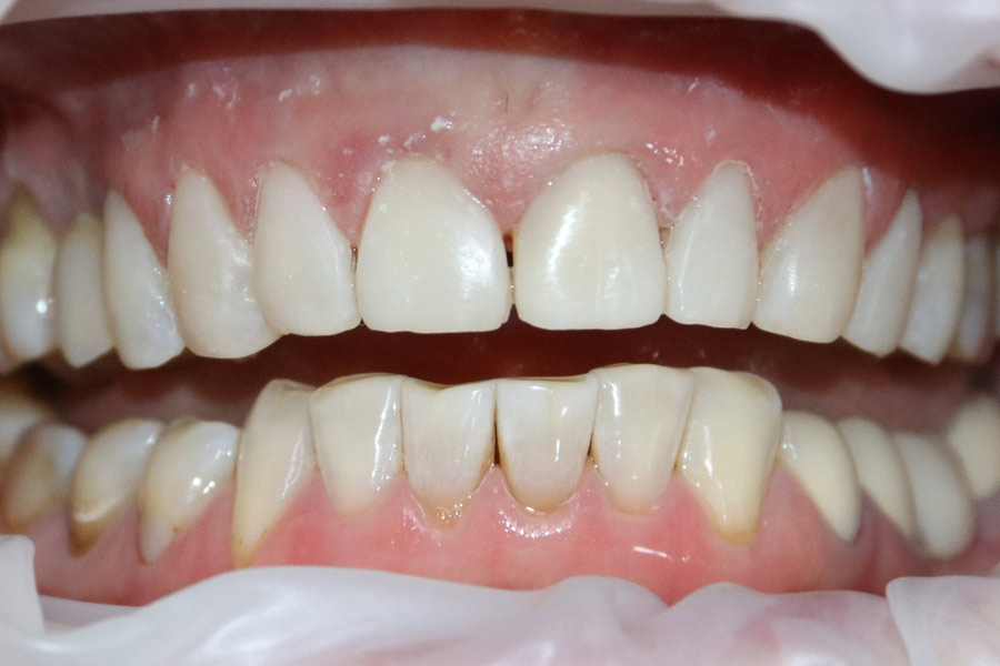Реставрация зубов японским реставрационным материалом Estelite Asteria