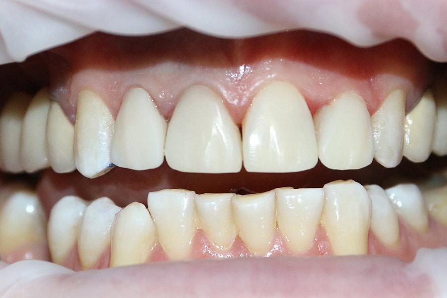 Реставрация зубов японским материалом Estelite Asteria