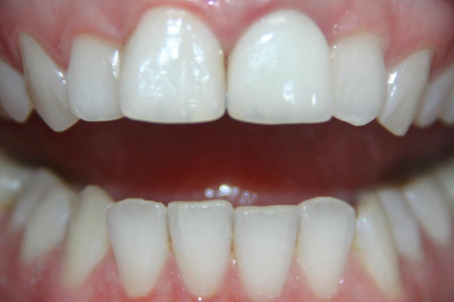 Восстановление зуба керамическим виниром Emax