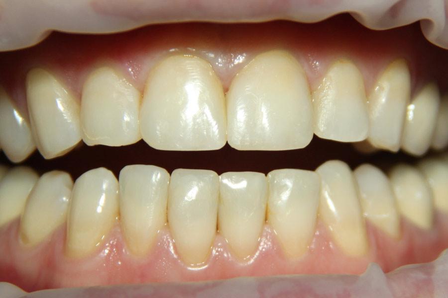 Профессиональная гигиена полости рта методом Air Flow
