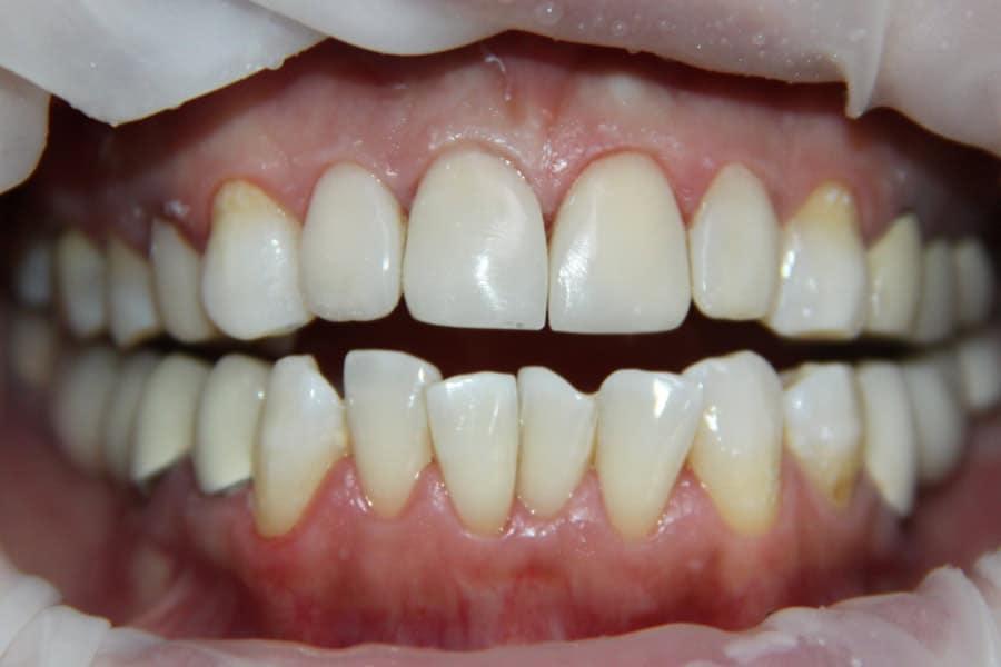 Восстановление зубов винирами, изготовленными прямым способом
