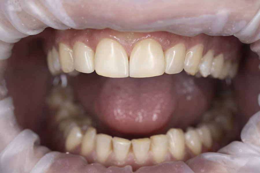 Коррекция зубов реставрационным материалом Estelite Sigma Quick