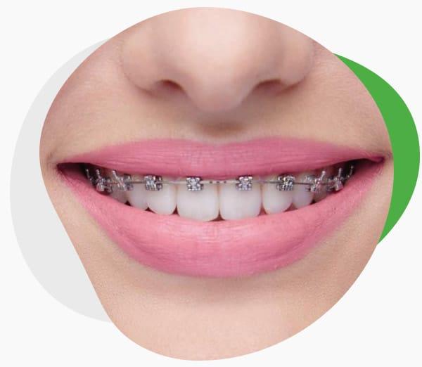Инновационные брекеты H4 (OC Orthodontics — США)