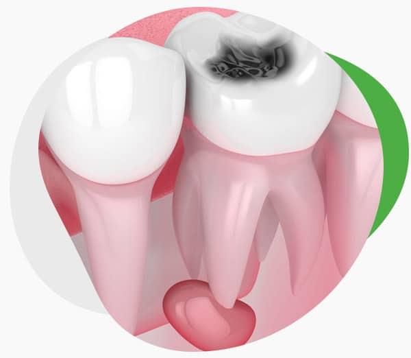 Удаление и лечение кисты зуба