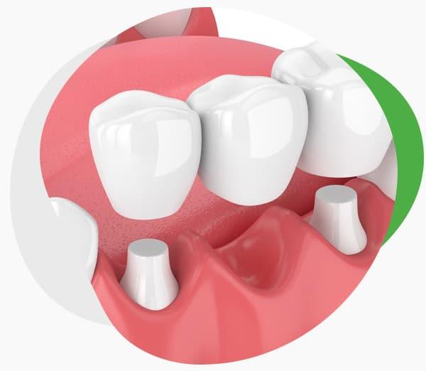 Мостовидные несъёмные зубные протезы