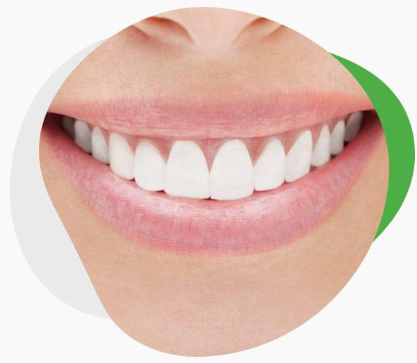 Домашнее отбеливание зубов Crest 3D White