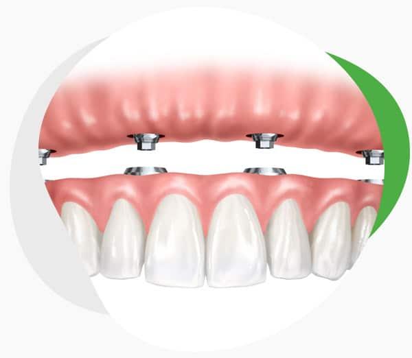 Покрывной зубной протез на имплантах