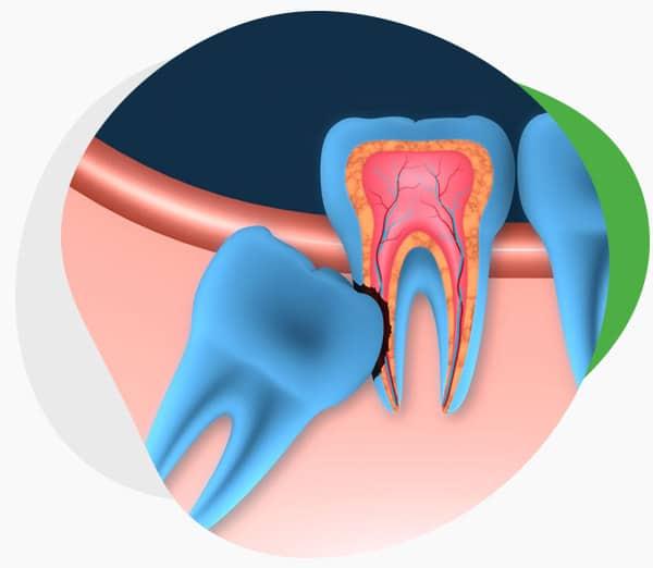 Удаление ретинированного и дистопированного зуба