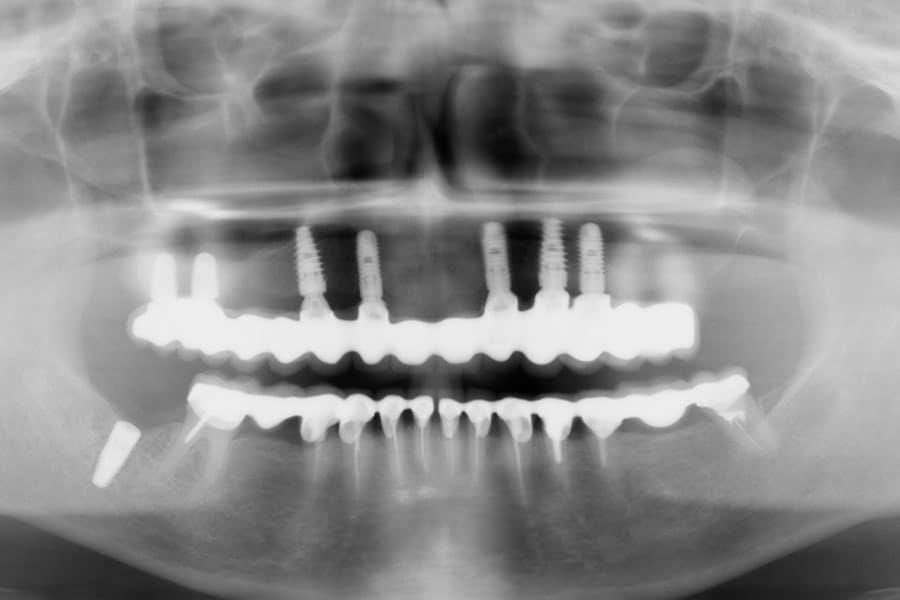 Протезирование на имплантах с помощью металлокерамики